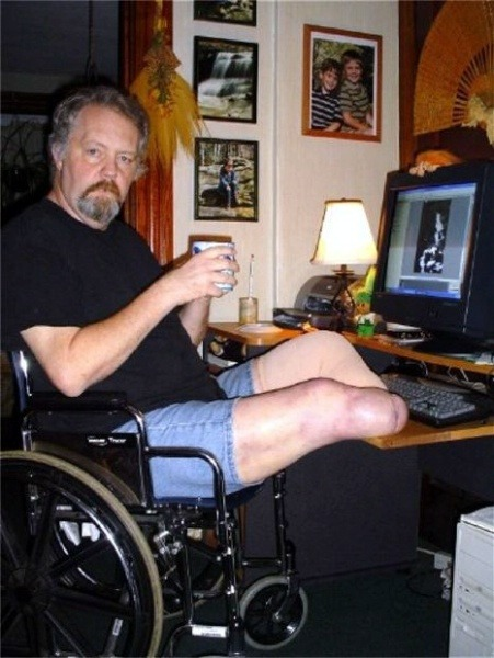 [Image description: image is a photograph of a middle-aged white man sitting at a desktop PC holding a mug. He wears a black t-shirt and jean shorts. He sits in a black, manual wheelchair, resting his legs which were amputated below the knee on the shelf-drawer that holds the computer's keyboard. The man stares at the camera with a blank expression on his face.] Wow, this man's courage inspires me to dick around on the computer, too. That's my excuse and I'm sticking to it.