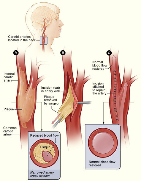 anaestheticroom:  Carotid Endarterectomy. This treatment is mainly for people whose carotid arteries are blocked 50 percent or more.