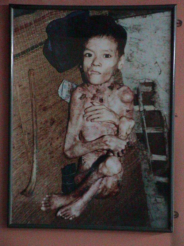 Victim of Agent Orange