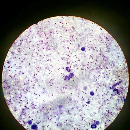 #plasmodium #parasitemia #hyperparasitemia #microscopic  #malaria (Taken with Instagram)