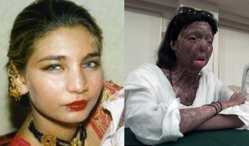 Fakhra Younus had acid poured over her face and chest in 2000 whilst she slept after trying to escape the unhappy marriage she was forced in to. The attacker was her husband.