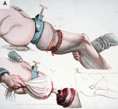 Images from Two Hundred Years of Surgery.
