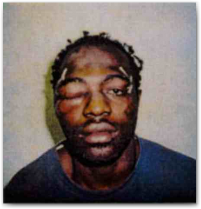 theybc:  Yesterday Rodney King passed away. A police brutality victim who was fortunate in that he was being taped when officers unloaded their frustrations on him. The acquittal of the officers who beat him led to the 1992 riot and created a ripple effect throughout our society. Unfortunately there continues to be all too many people who still suffer a fate similar to Rodney King at the hands of people who shouldn't be police officers. A code of silence and a political culture that venerates police much more than the citizens they are meant to serve  have made police irreproachable even in cases of unjustifiable murder. This is just one aspect of an issue that includes lawmakers, judges, and for-profit prisons that leads to Americans having their liberties violated and trampled while creating a permanent underclass that costs the government more and more money each year while there is no estimate to the toll it takes on the people it affects. - C.S.