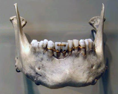 "ancientpeoples:   Treatment methods for oral and dental ailments in Ancient Egypt Like us, the ancient Egyptians weren't spared from oral ailments. Their diet, which was full of fibre and coarse, often uncooked, vegetables, in combination with a dental hygiene that possibly wasn't up to our standards, caused various diseases such as attrition, caries and periodontitis. But the Egyptians were inventive, and not unversed in medical practices: they had devised many treatments for the various affections that bothered them, both chirurgical and medicinal in nature.  Molars suffering from attrition Common diseases Attrition was by far the most common affection in ancient Egypt. Caused by the coarse diet (which may also have lacked necessary minerals and vitamins) and the presence of sand, husks, and sometimes even straw, in their bread, many Egyptians suffered from this condition. The skulls and jaws found in burial shafts and tombs almost all show attrition to some degree. This may not sound like a very serious disease, but attrition, when left unchecked, can be a stepping stone to much more severe issues. It can lead to abscesses, inflammation of the gums and jawbone, and tooth loss.  Despite a diet free of refined sugar, caries was still fairly well represented amongst Egypt's pearly whites. Interestingly enough, this disease seemed to have been much more common among the elite than it was among lower classes. This may be attributed to the higher sugar content in the diet of higher class Egyptians.  Other conditions, most of them attested in medical papyri such as papyrus Ebers, were dental abscesses (""purulency in the gums""), receding gums (""a tooth which gnaws against an opening in the flesh""), loose teeth, ulcerative stomatitis (""eating ulcer on the gums""), periodontitis (""blood-eating""), alveolar diseases, dental sepsis and calculus.  Lower jaw with traces of a periodontal abscess (the small hole in the bone) Cures, treatments and dentists So what did the ancient Egyptians do about this? Dental conditions aren't to be taken lightly: they can very well prove lethal if they remain untreated. There's some discussion on whether or not the profession of dentist existed in Pharaonic Egypt, mostly because of the seeming lack of actual surgery to cure these affections. To some extent, physicians in Egypt relied on spells and other magic for their treatments, but medicinal therapy was just as big a part of this. The papyri Ebers, Hearst and Berlin give us quite some recipes which could very well have made a difference by alleviating the pain or even inhibiting inflammation. If we define the term dentist as one who knows and attempts to cure diseases of the mouth, then there certainly have been dentists in Pharaonic times.  The papyrus Ebers has eleven recipes which pertain to oral issues. Four of these are remedies for loose teeth: the tooth in question is either 'packed' or 'filled' (the translation and therefore our interpretation is a little ambiguous) with a mixture that is akin to a modern day composite filling: a filler agent (ground barley) is mixed with a liquid matrix (honey) and an antiseptic agent (yellow ochre). This is either used as an actual filling, or as a splint to keep the tooth in place.  Egyptians also had various mouthwashes and mixtures that had to be chewed and then spit out, meant to combat gum disease. Some of these have more active ingredients than the others, and they certainly seem to have at least provided the patient with some manner of pain relief. These recipes have ingredients such as sweet beer, creeping cinquefoil, bran and celery in different compositions. Some of the mouthwashes were for the specific purpose of maintaining a healthy mouth and teeth.  But not everything is purely medicinal in Egyptian medicine. The Edwin Smith surgical papyrus gives us treatments that are, as the title suggests, much more surgical in nature. One case handles the dislocation of a jaw, and the treatment for this hasn't changed in over five thousand years. Some of the discovered jaws and skulls have evidence of additional treatment next to the application of medicine. It's not altogether impossible that Egyptian dentists knew how to drain an abscess, or cut away cankered gums.  Pharaonic physicians were no strangers to reconstruction works: there have been three instances of a dental bridge: one or more lost teeth reattached by means of a gold or silver wire to the surrounding teeth. However, it's a bit unclear whether these works were performed during the life of the patient or after death – to tidy them up, as it were, before their burial. All in all, the ancient Egyptians were very attached to their pearly whites, and took great care to treat the diseases they knew as best as they could. They were skilled in medicine and surgery, relying on actual treatment just as much, or perhaps even more, as they did on magic spells and prayers to the Gods.  Hesy-re, ""Head of Dentists"" - A Third Dynasty physician   Aah, the wonderful memories of my first year's paper. <3"