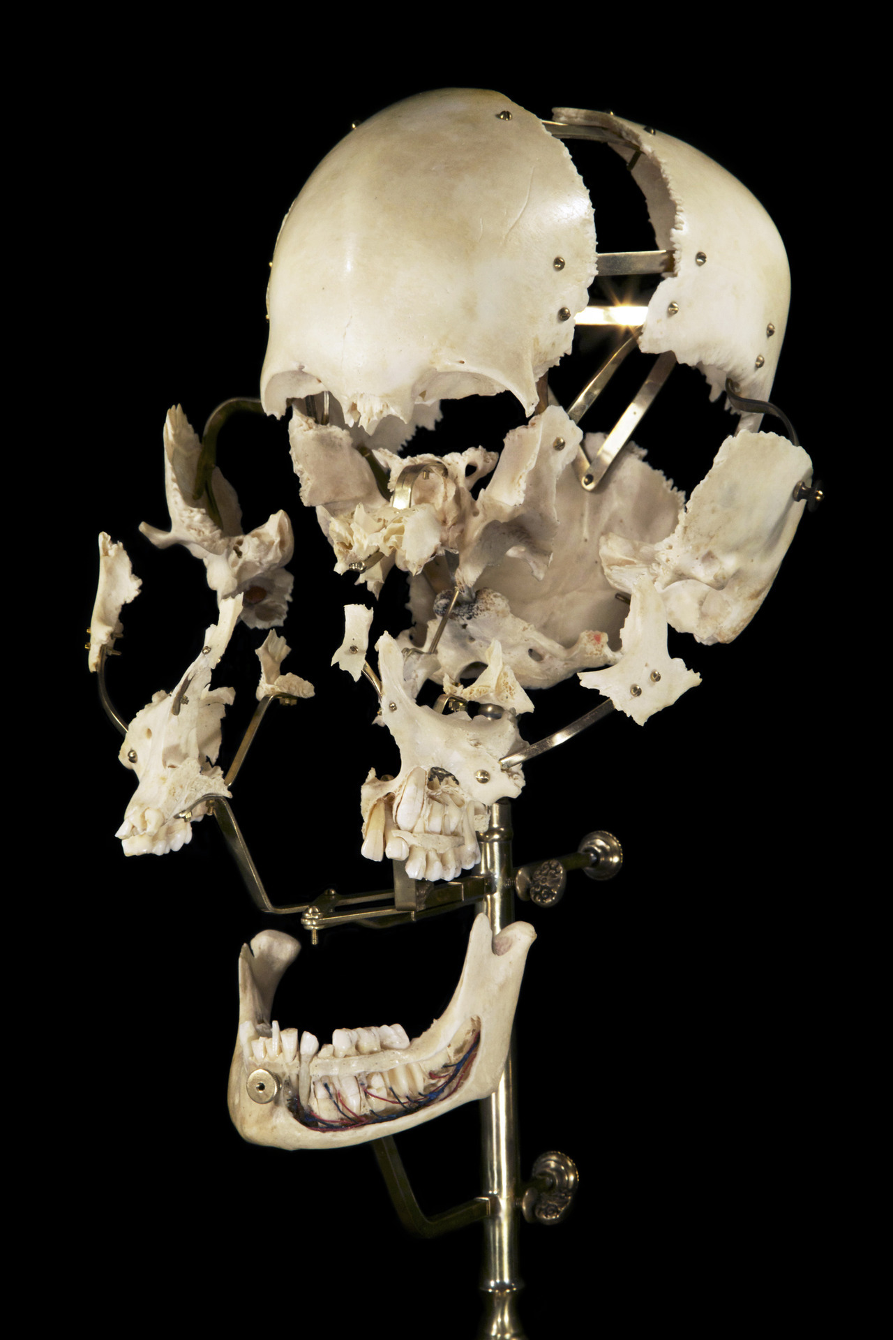 ryanmatthewcohn:  Exploded Human Skull by Ryan Matthew. Photo by Sergio Royzen.