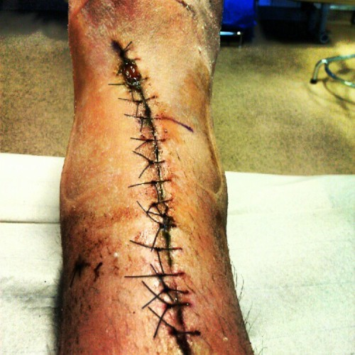And here's my foot/leg again..