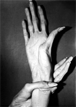 "Arachnodactyly (""spider fingers""), common to Marfan Syndrome, EDS and people with CBS deficiency."