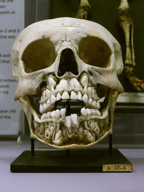 Childs skull with both baby and adult teeth.