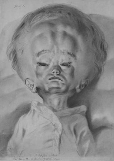 midnight-gallery:  Drawing of a child with hydrocephalus by Jan Van Rymsdyk.
