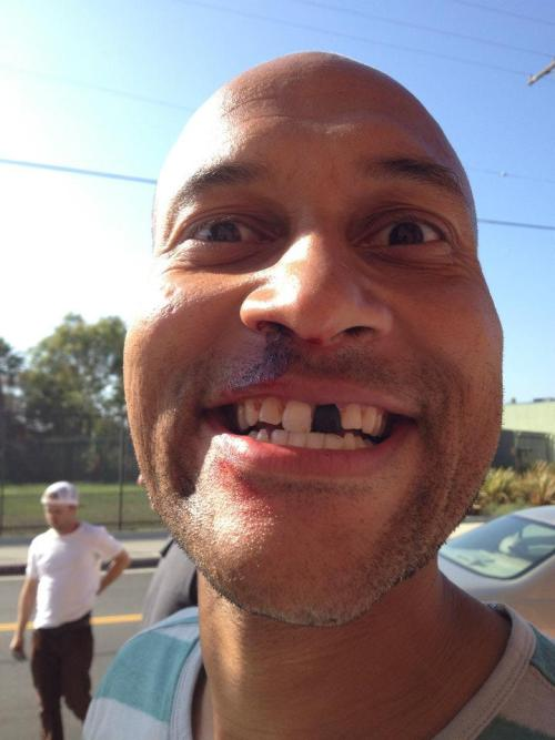 Key & Peele Season Two? More like Key & Peele Season Tooth! Click the image for more behind-the-scenes set pics.