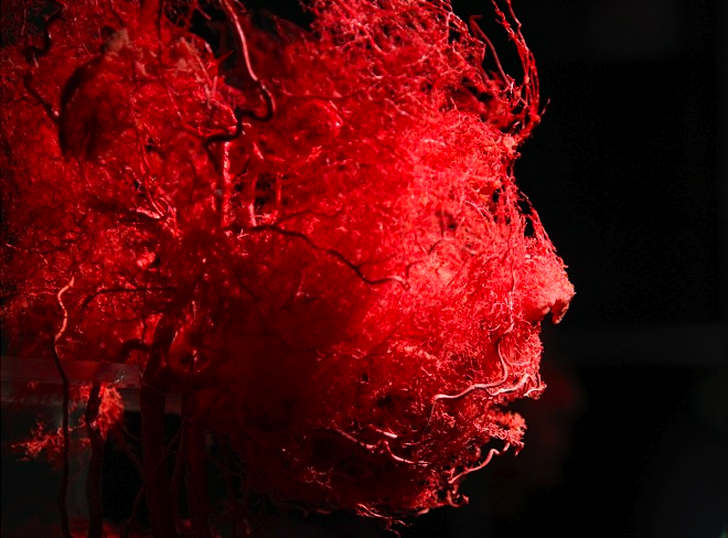 "Plastinated blood vessels of a human face from ""The Human Body"""