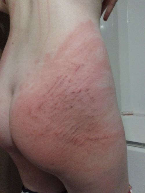 bdsmproblems:  BDSM Problem #360 Sitting after a beating….