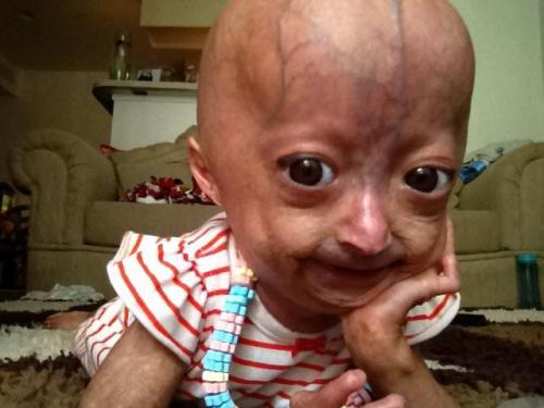 "iconichubela:  This is Adalia Rose. She's 5 years old and has Progeria Syndrome. I can't believe she's this strong. She's so beautiful and amazing, and honestly deserves a reblog on here. no it's not a ""reblog or you have no heart"" post, but if you honestly can't have this on your blog because it'll make it look ""ugly"", then i honestly don't know what to say to you people. So yeah, this post is for Adalia Rose, the strongest 5 year old I've ever seen. Even her mom shaved her head for her. Bless this family."