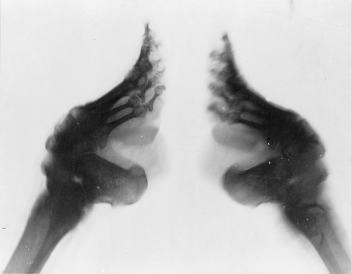 X-ray of bound feet, China, 1890-1923. Source: Frank and Frances Carpenter Collection, Library of Congress