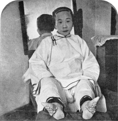 "Underwood & Underwood, A high caste lady's dainty ""lily feet"", China, 1911."