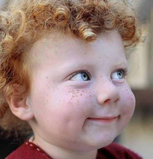 sweet little freckleface