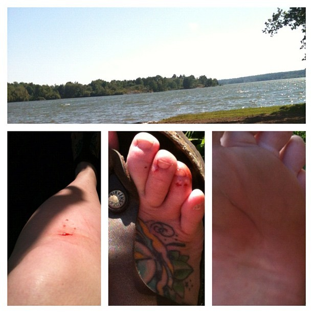 The lake is fun … Until you slice open a knee, feet and hands. (Taken with Instagram)