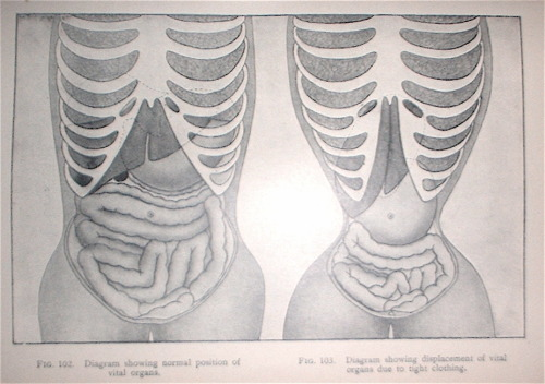 historically-disturbing:  Deformation of the internal organs attributed to corset wearing.  Just had to post this on my side blog now that I'm waist training again.