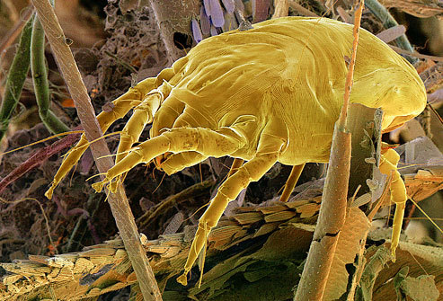 The dust mite (D. pteronyssinus) lives in carpet, pillowcases and anywhere else it can feed on dead skin cells.