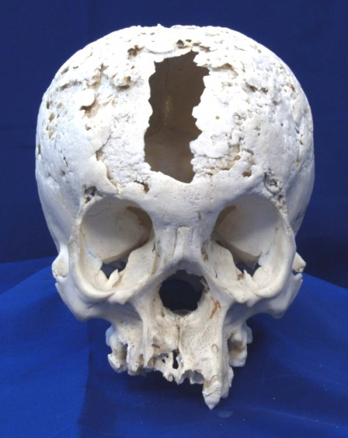 "dead-men-talking:  milesian:  Syphilitic Cranium 19th century cranium with caries sicca caused by the gummatous lesions of syphilis. This is an extreme example of tertiary syphilis (neurosyphilis). Pitted lesions erode, heal and scar over many years and infection of the brain and other parts of the body along with advanced dementia would have also occurred.  Syphilis is quickly becoming my favorite ""bone disease""!"