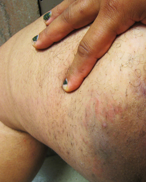 our-skin:  [image description: a photograph of the upper thigh of a fat black woman.  No vulva showing, regular body hair is also there] This is one of my thighs.  I don't shave them because I end up with horrible skin irritation, ingrown hairs, boils, etc.  The darker dots are small scars on my legs are from various chub rub problems (boil, cyst, ingrown hair, inflammation, etc. etc).  Some of the skin is reddened because I have several boils under the skin right there (a carbuncle). It's my thigh.  No one has ever left my bed because it isn't perfectly smooth and evenly colored.  I haven't had anyone comment on it at all.  beautiful and powerful