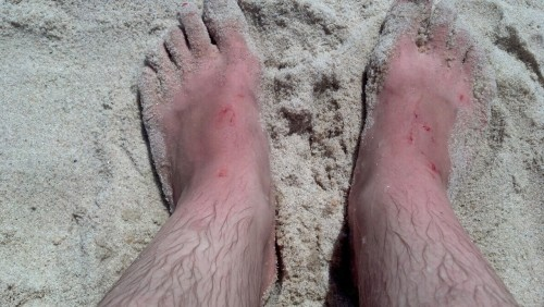 i am incapable of going into the ocean without bleeding
