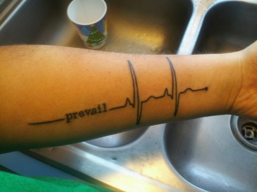 cranquis:  wayfaringmd:   hipstersdontknowcardiology:   nhmedic:   My new tattoo. Kinda similar to others but I played with it a little   THIS IS WHAT A NORMAL HEART RHYTHM LOOKS LIKE, HIPSTERS.    Actually, judging by voltage alone, this person has left ventricular hypertrophy and right atrial enlargement, so they likely have heart failure. So I'm doubtful that that heartbeat will prevail for too long…   WayfaringMD with the eagle-eyed SMACKDOWN. HAHAHA!!!