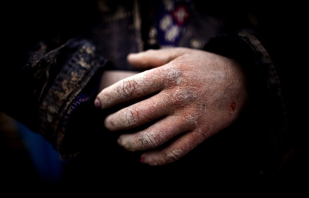 gemma-jt:  The rough hands of an Afghan child, at the Sadat Ltd. Brick factory, where some children work from 8am to 5 pm daily, seen on May 14, 2010 in Kabul, Afghanistan. Child labor is common at the brick factories where the parents work as laborers, desperate to make more money enlisting their children to help doing the easy jobs