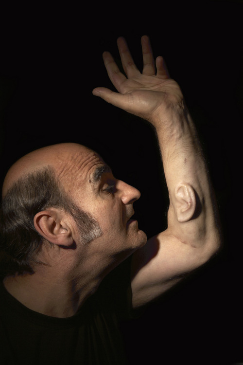 "For his piece ""Third Ear,"" Stelarc convinced a surgeon to implant a cell-cultivated ear in his forearm."
