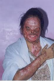 Acid burn victim
