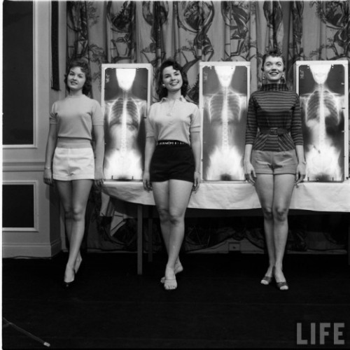 "nabokovsnotebook:  Chiropractor's Beauty Contest, 1956 (Life Magazine) From The Retronaut  Sometimes I want to go up to people who were alive during the 1950's and yell ""WHAT THE FUCK WAS WRONG WITH YOU PEOPLE!?!?!"" I fully expect future generations will want to do the same to us."