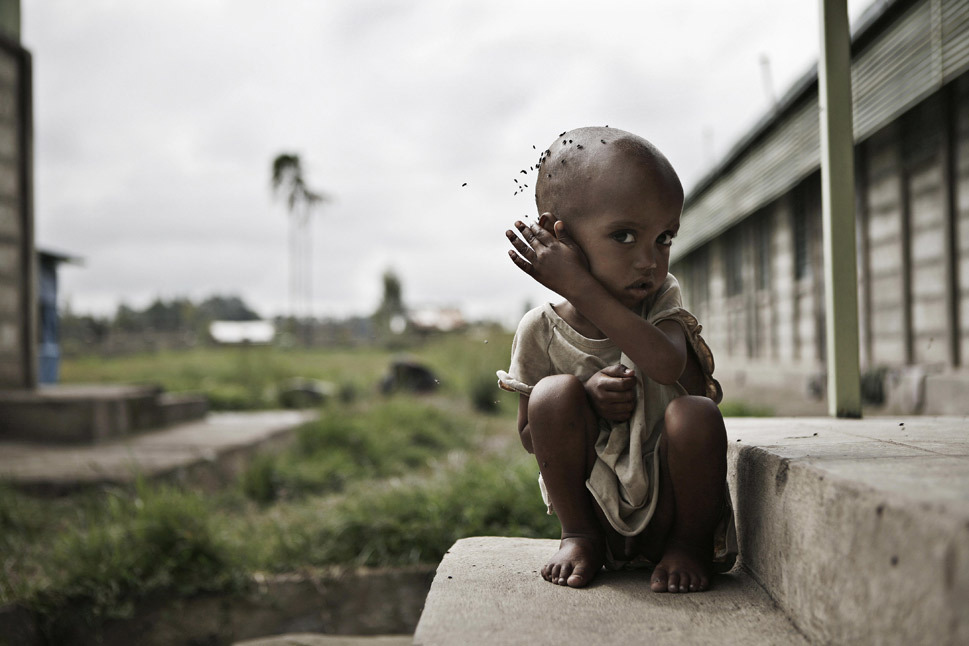 "A malnourished boy sits in front of a feeding center on June 10, 2008, in southern #Ethiopia. Late rains in 2012 have put the country at risk for famine once again. JOSE CENDON/AFP/Getty Images ""If Ethiopians are looking for someone to blame for their three-spot leap on this year's list, they might justifiably look to their neighbor to the east, Somalia. Continued instability in that country has had spillover effects in Ethiopia, which in 2011 sent troops across the Somali border in an effort to stem the rising influence of the al-Shabab movement. During the most intense period of a devastating combination of drought, famine, and instability in Somalia, the United Nations High Commissioner for Refugees estimated that some 23,000 refugees were arriving each month in Ethiopia, straining resources. The drought also took its toll on the Ethiopian economy, which has experienced runaway growth in recent years but slowed slightly in 2011. While the Ethiopian government has moved to institute some reform in the agriculture sector — which employs 85 percent of workers and accounts for 41 percent of total output — those changes have been incremental at best and hardly sufficient to stand up to 2011's record-breaking dry spell."""