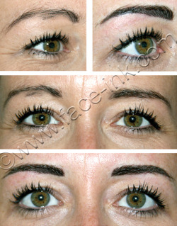 EYEBROW RESHAPE & LOST HAIR REPLACEMENT Eyebrows enhanced using permanent makeup using nouveau contour pigment choc choc.