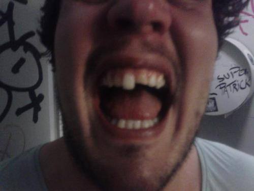 Brett's chipped tooth on the back of @bastions, @thelonghaul and @parisoband at The Old Blue Last on Saturday. He left after losing his face during @kerouacband