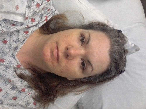 For posterity. Day two after surgery.