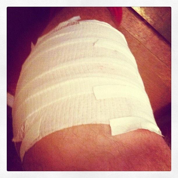 Softball is really kickin' my tail and tearin' me up (Taken with Instagram at Heath And Sallie's Cozy Abode)