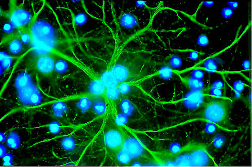 "ikenbot:  Marijuana Reveals Memory Mechanism  Glial cells, not neurons, are responsible for marijuana-induced forgetfulness  Until recently, most scientists believed that neurons were the all-important brain cells controlling mental functions and that the surrounding glial cells were little more than neuron supporters and ""glue."" Now research published in March in Cell reveals that astrocytes, a type of glia, have a principal role in working memory. And the scientists made the discovery by getting mice stoned.  Marijuana impairs working memory—the short-term memory we use to hold on to and process thoughts. Think of the classic stoner who, midsentence, forgets the point he was making. Although such stupor might give recreational users the giggles, people using the drug for medical reasons might prefer to maintain their cognitive capacity.  To study how marijuana impairs working memory, Giovanni Marsicano of the University of Bordeaux in France and his colleagues removed cannabinoid receptors—proteins that respond to marijuana's psychoactive ingredient THC—from neurons in mice. These mice, it turned out, were just as forgetful as regular mice when given THC: they were equally poor at memorizing the position of a hidden platform in a water pool. When the receptors were removed from astrocytes, however, the mice could find the platform just fine while on THC.  The results suggest that the role of glia in mental activity has been overlooked. Although research in recent years has revealed that glia are implicated in many unconscious processes and diseases [see ""The Hidden Brain,"" by R. Douglas Fields; Scientific American Mind, May/June 2011], this is one of the first studies to suggest that glia play a key role in conscious thought. ""It's very likely that astrocytes have many more functions than we thought,"" Marsicano says. ""Certainly their role in cognition is now being revealed.""  Unlike THC's effect on memory, its pain-relieving property appears to work through neurons. In theory, therefore, it might be possible to design THC-type drugs that target neurons—but not glia—and offer pain relief without the forgetfulness."
