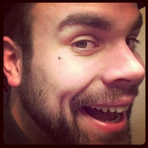 Christoph gets his first Microdermal! (Taken with Instagram)