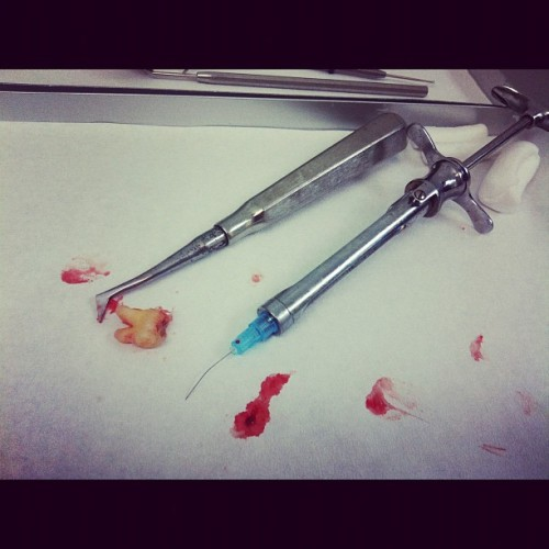 Wisdom tooth  (Taken with Instagram)