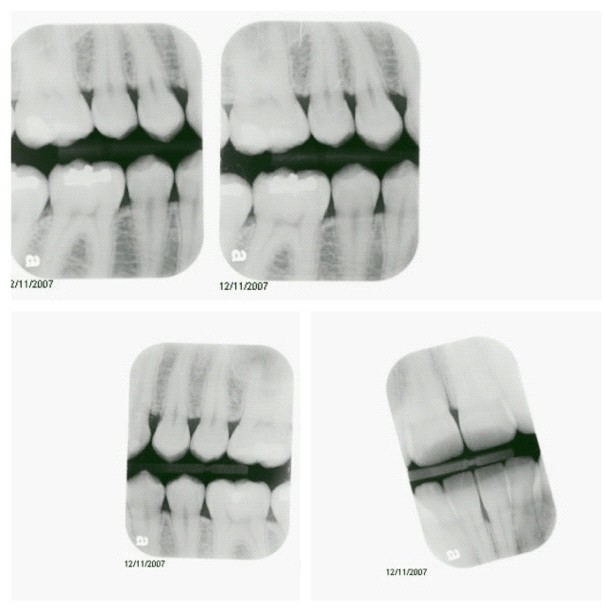199 - geek stink breath #xrays #teeth #internal #nametheband #medical #dental #triptych #photoaday #vscocam  (Taken with Instagram)