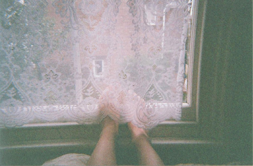 16bruises:  unbenannt by Dulcette on Flickr.