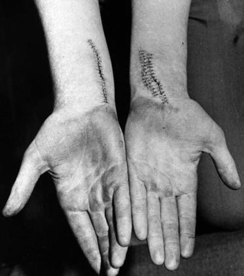 brownmountain:   Stitched wrists from the suicide attempt of a young person.
