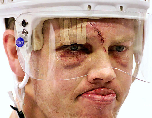 Mats Sundin looking like Chucky. Clearly one of the thoughest S.O.B's in the NHL.