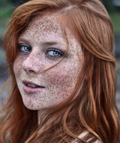 g-rantsupermoney:  those freckles