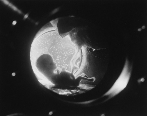 life:  Fetus in an artificial womb, 1965. See more of Fritz Goro's mind-blowing science photos here on LIFE.com.  Wow
