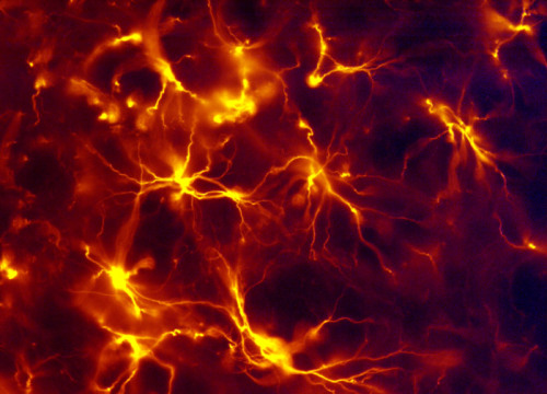 biocanvas:  Astrocytes from the spinal cord of a rat at 1000-times magnification. Image by Morgan Woods, Purdue Pharma L.P.