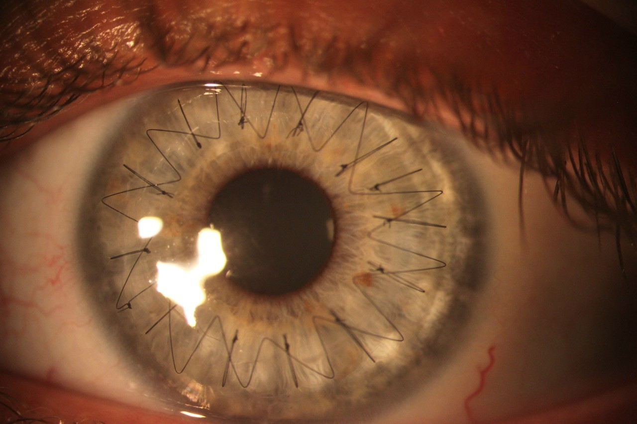 abstractthoughts:  My girlfriend recently got a cornea transplant. Here is a high res image of the stitches in her eye.