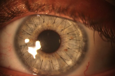 My girlfriend recently got a cornea transplant. Here is a high res image of the stitches in her eye