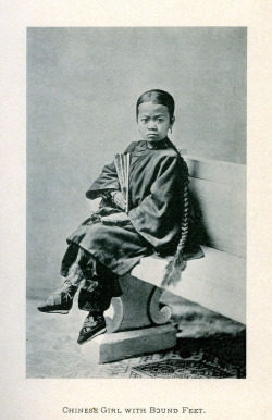 Chinese girl with bound feet/