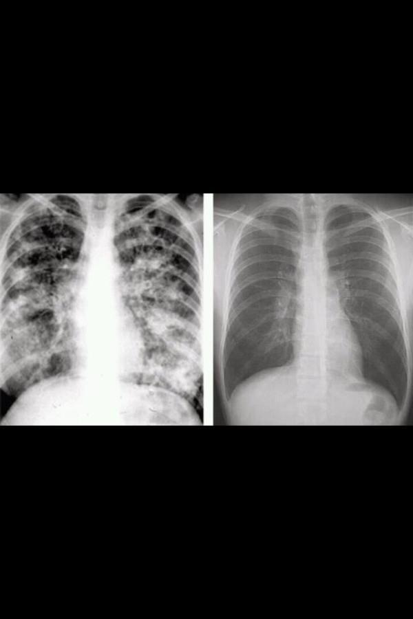 blast-0ff:  teddybearsandhandcuffs:  Cystic Fibrosis damaged lungs on the left vs normal healthy lungs on the right. See the difference?  yeah my lungs look a bit better than the left but nowhere near the clarity of the right